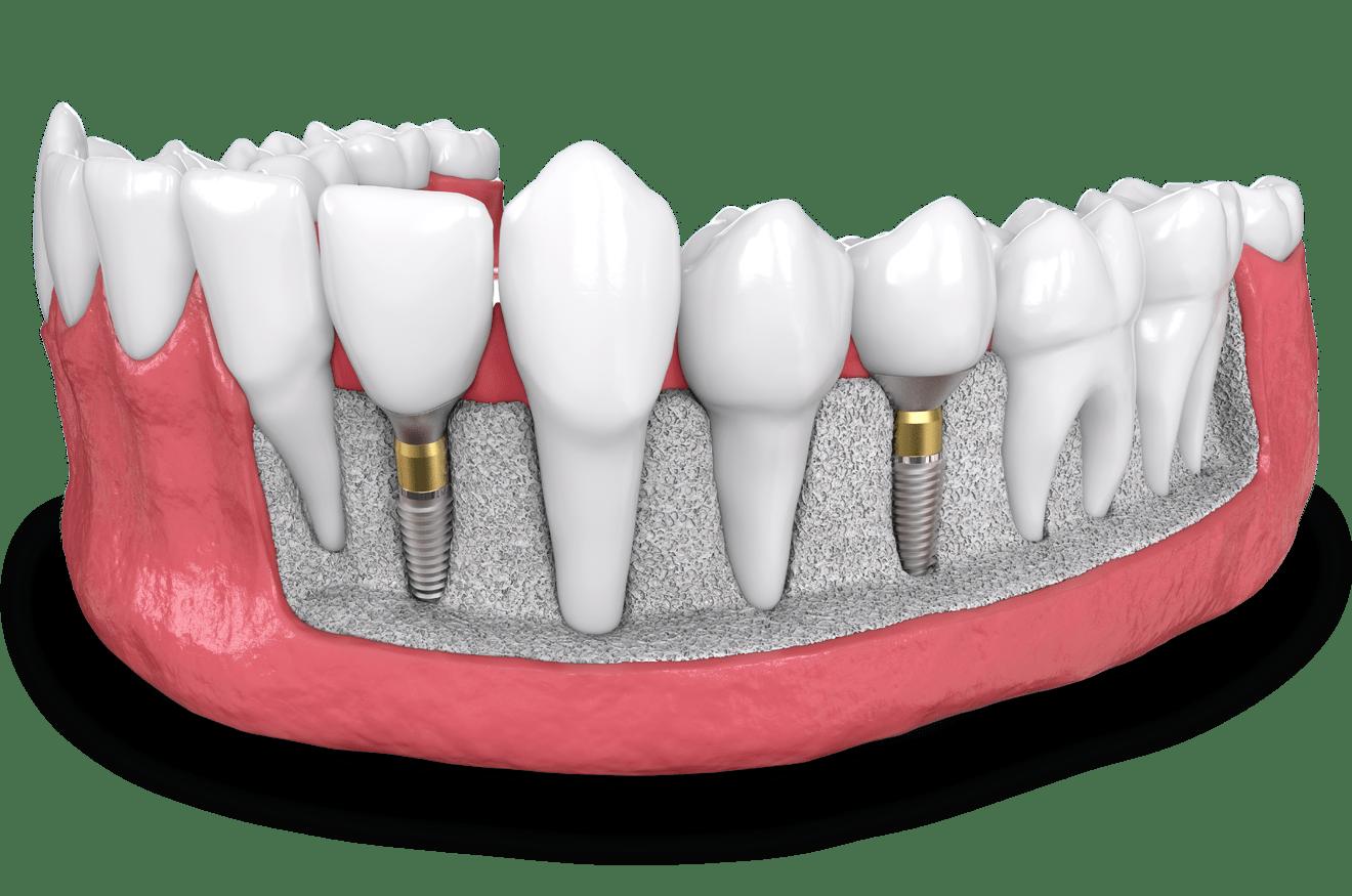 dental implant model Falls Church, VA