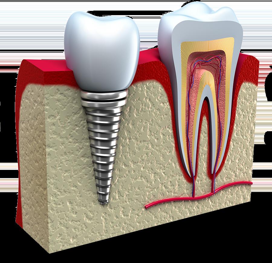 failing dental implant model Falls Church, VA