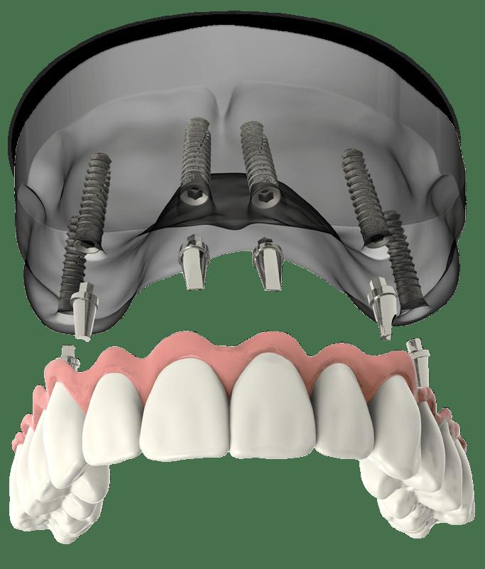 full arch dental implants model Falls Church, VA