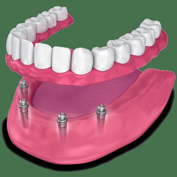 implant supported dentures model Falls Church, VA