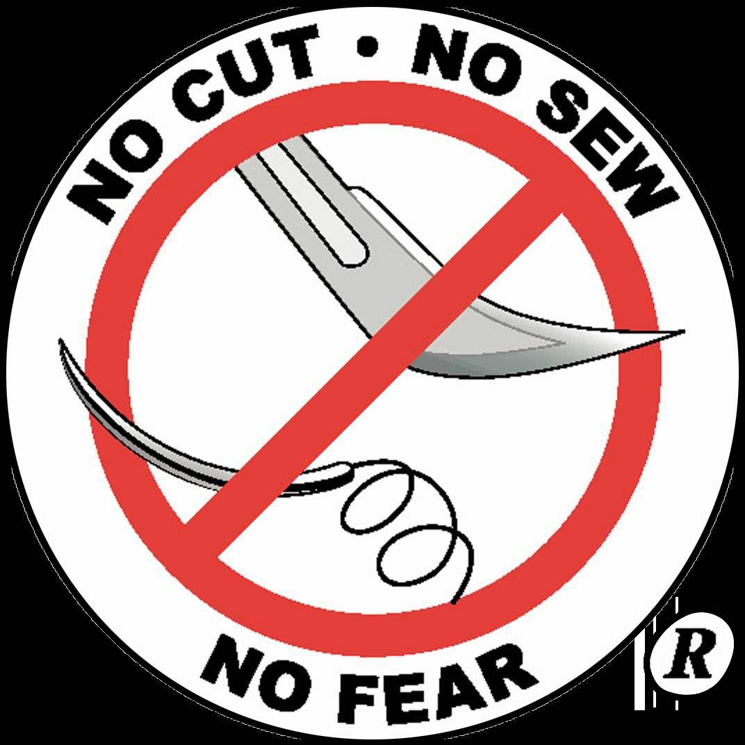 no cut no sew LANAP and LAPIP Falls Church, VA