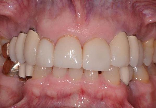 Dental implant patient after Falls Church, VA