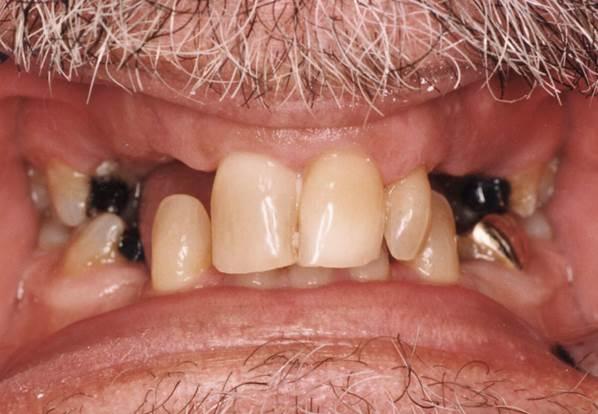 Dental implant patient before Falls Church, VA