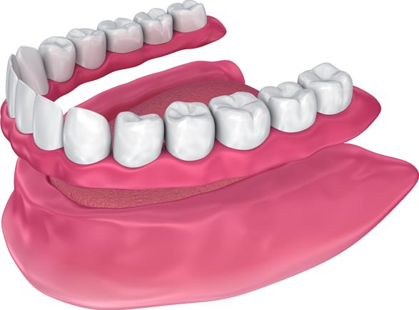 Full arch dental implants Falls Church, VA