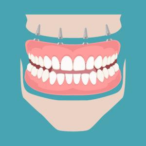 Full Arch Dental Implant