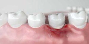 a model portraying receding gums