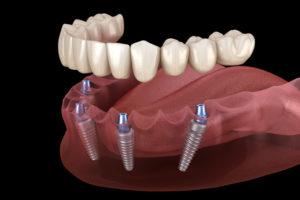 "Full Arch ""All-On-Four®"" Dental Implants"