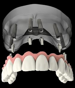 a model of full arch dental implants