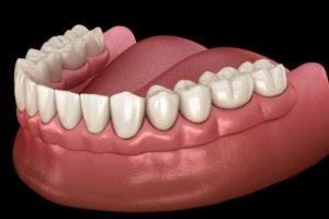 Dentures On A Patients Gum Model