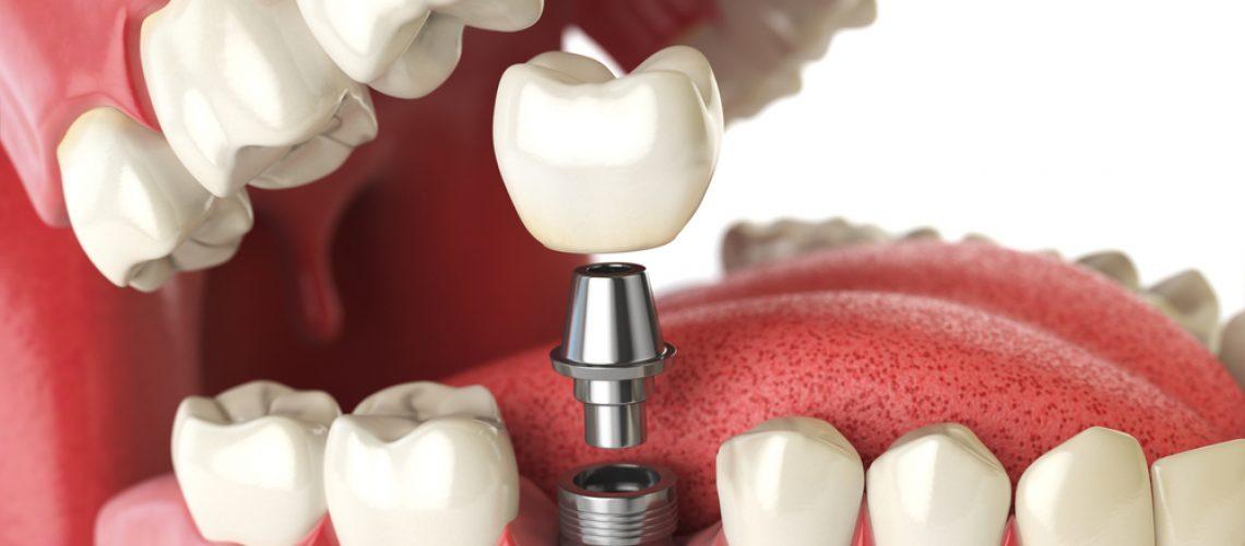 Dental Implant Cost Breakdown