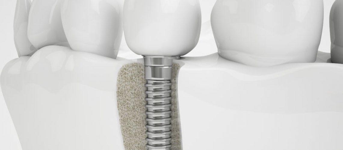 Bone Graft With A Dental Implant Sitting In it
