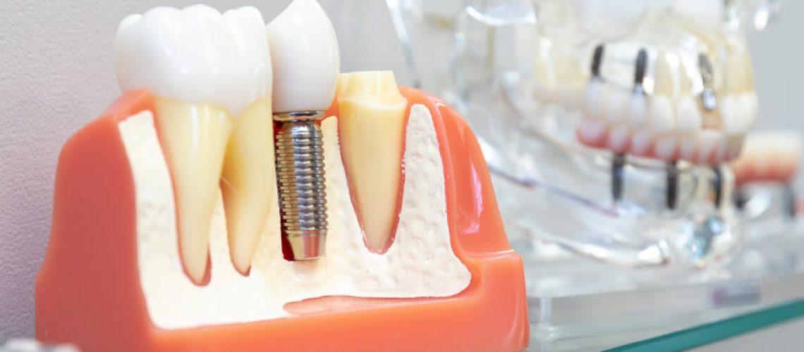 Dental Implant In Your Bone, Model