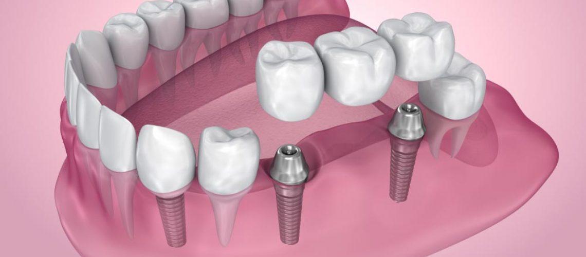 a model of a dental implant bridge